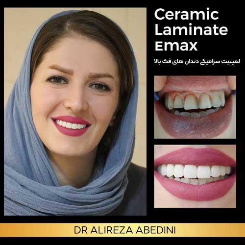 نمونه لمینیت سرامیکی خانم توسط دکتر علیرضا عابدینی