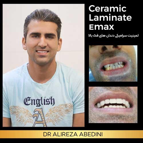 نمونه لمینیت سرامیکی ایماکس توسط دکتر علیرضا عابدینی