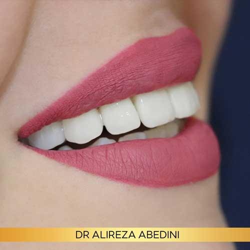 لبخند زیبا خانم - دندانپزشک علیرضا عابدینی