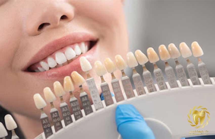 اصلاح فرم و شکل دندان ها با استفاده از لمینیت های سرامیکی