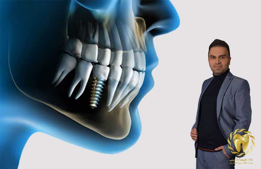 دندانپزشک ایمپلنت نجف آباد