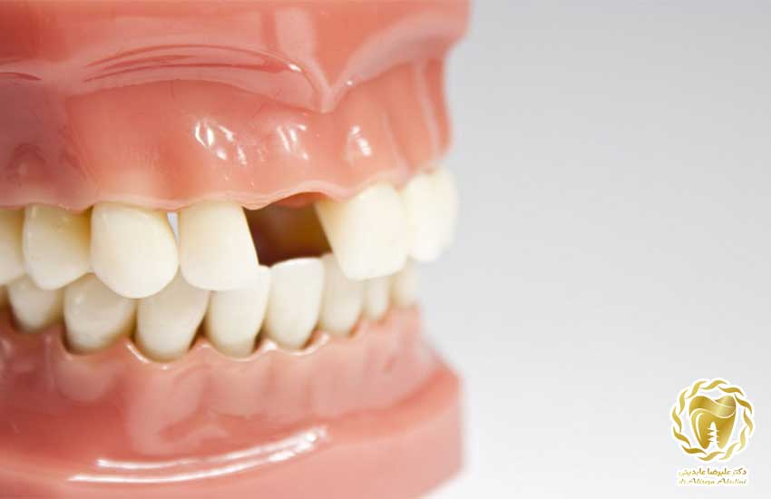 کاشت دندان نجف آباد