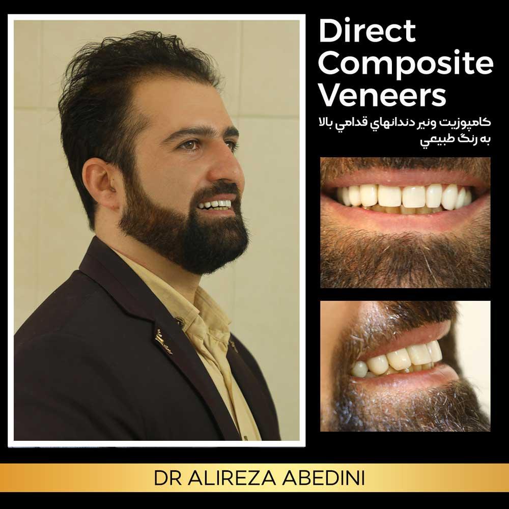 ونیر کامپوزیت دندان های قدامی بالا