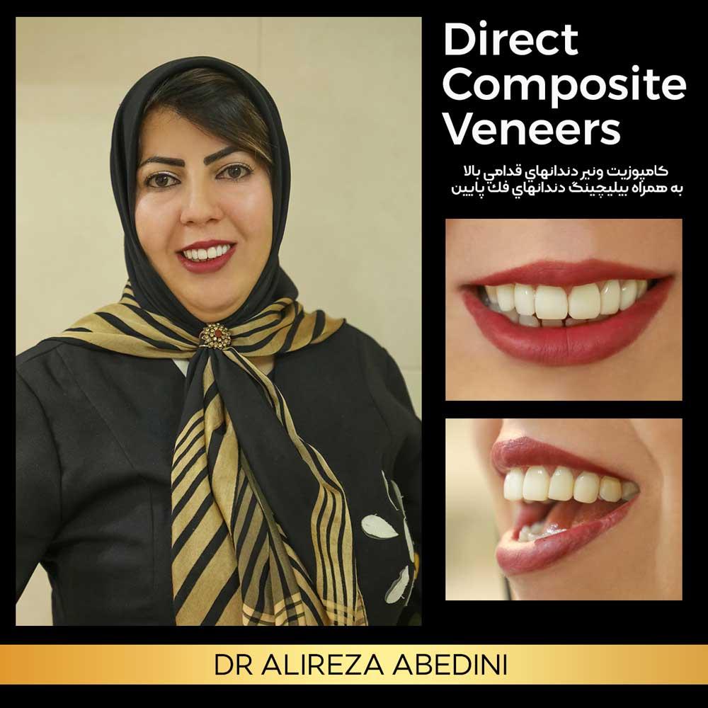 کامپوزیت ونیر دندان های قدامی
