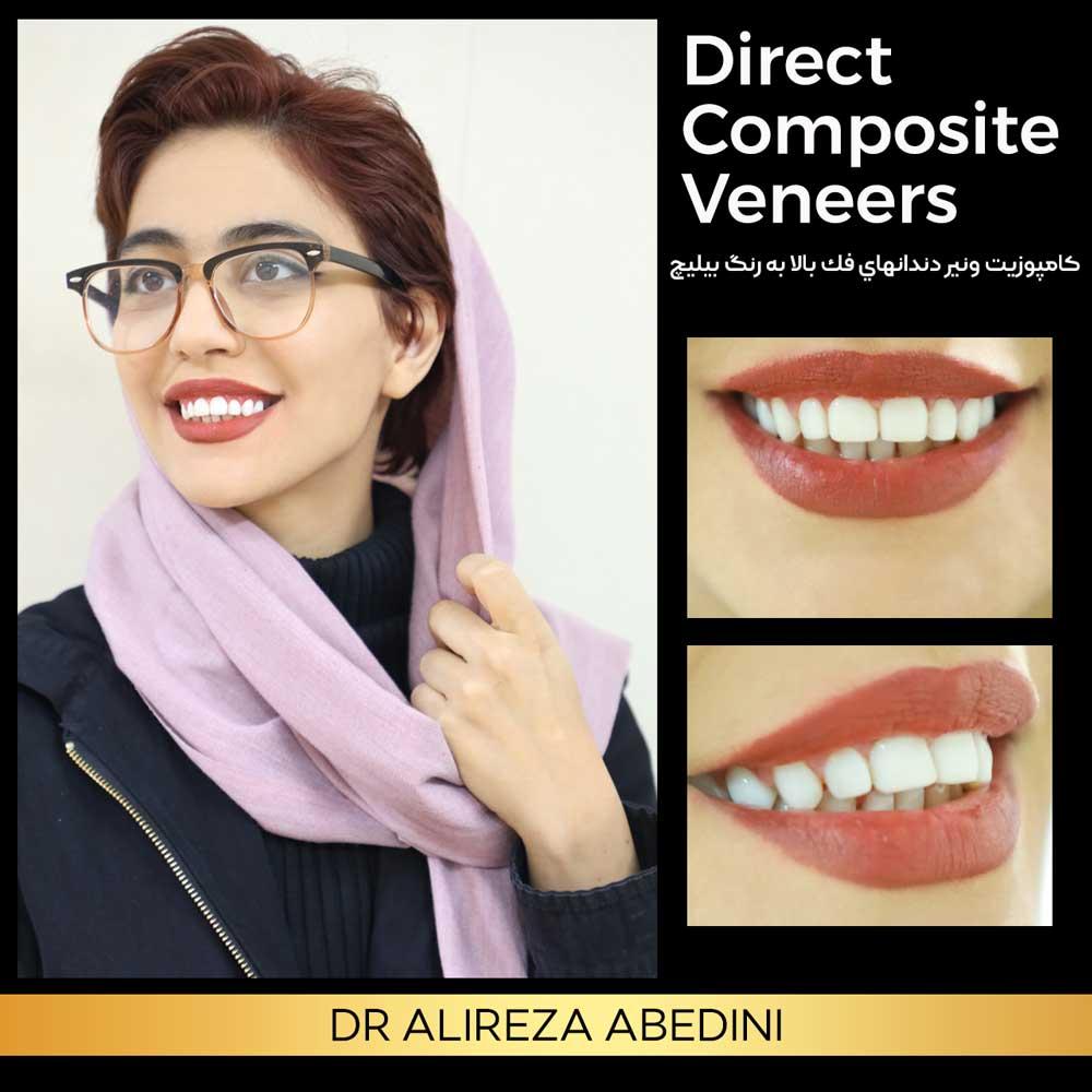 ونیرکامپوزیت دندان های فک بالا