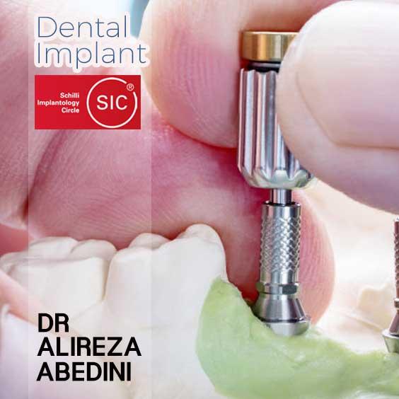 جایگزین کردن دندان از دست رفته