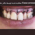 تشریح یکی از موارد مشکل و شایع دندانپزشکی زیبایی